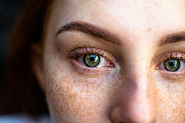 how-to-get-rid-of-freckles