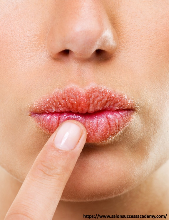 Caring For Lips