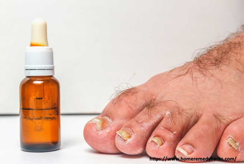 Oregano Oil - one cup of this will destroy your nail fungus